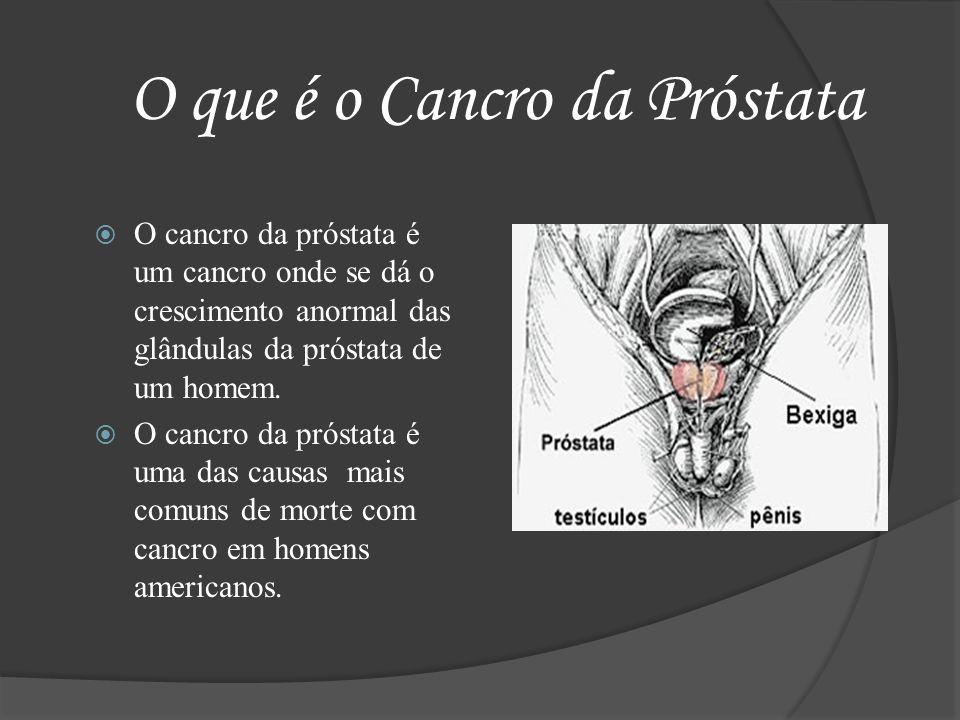 O que é o Cancro da Próstata O cancro da próstata é um cancro onde se dá o crescimento anormal das glândulas da próstata de um homem. O cancro da prós