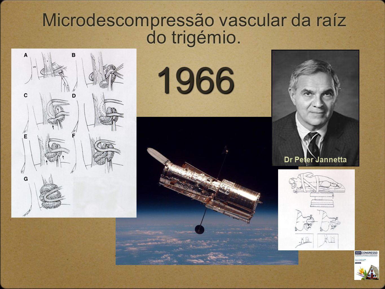 Microdescompressão vascular da raíz do trigémio. Dr Peter Jannetta 1966