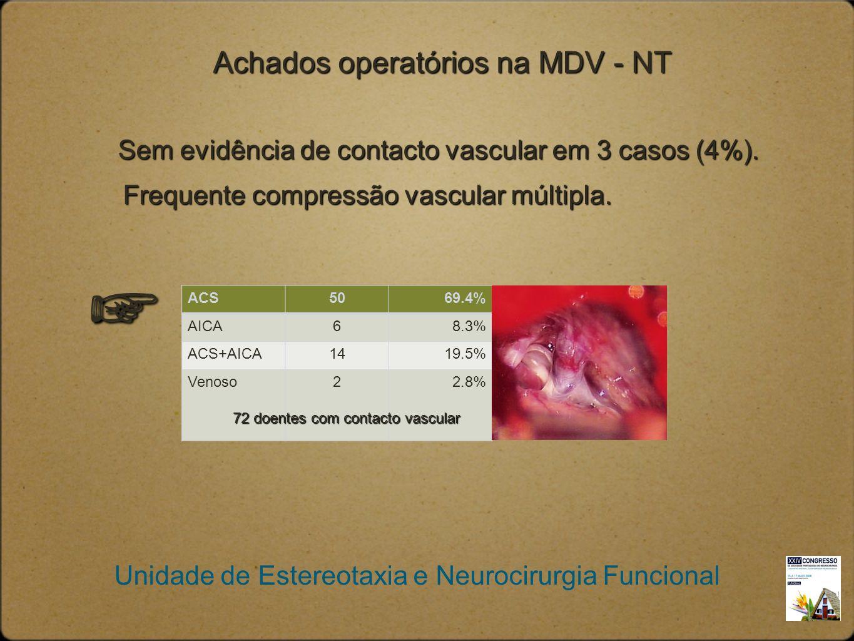 Unidade de Estereotaxia e Neurocirurgia Funcional Achados operatórios na MDV - NT Sem evidência de contacto vascular em 3 casos (4%). Frequente compre