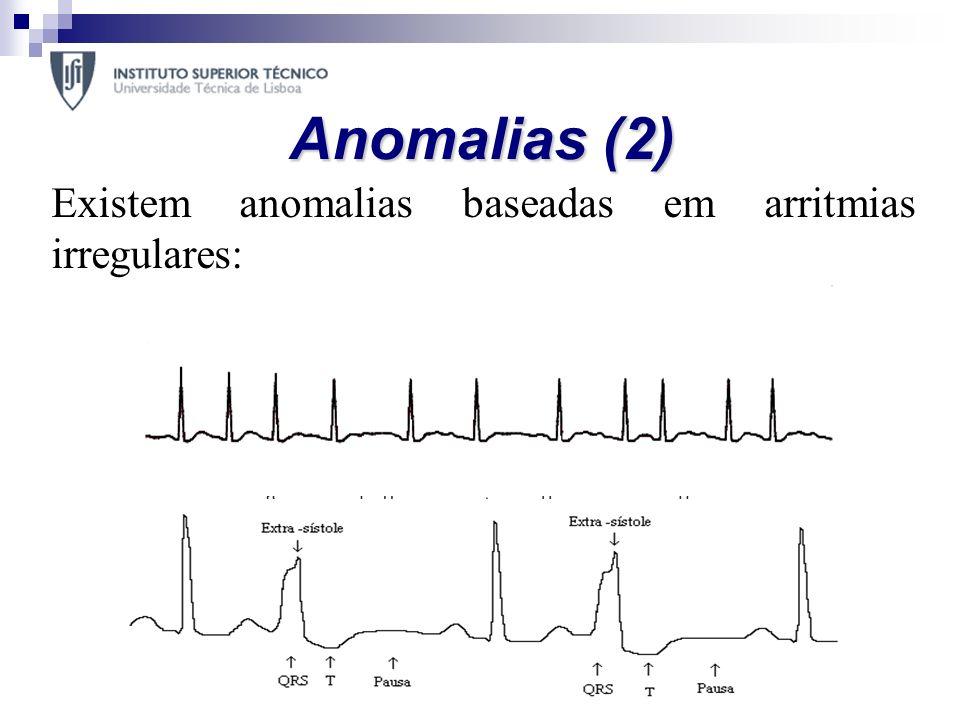 Anomalias (2) Extrassístole Auricular – ritmo cardíaco baixo com duração da onda P fora do normal; Extrassístole Ventricular – ausência da onda P, com
