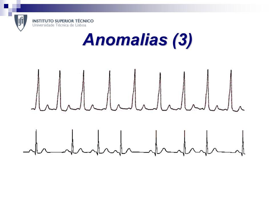 Anomalias (3) Bradicardia sinusal – ritmo inferior a 60 bpm; Taquicardia Sinusal – ritmo superior a 100bpm; Arritmia Sinusal – ritmo inferior a 60 bpm