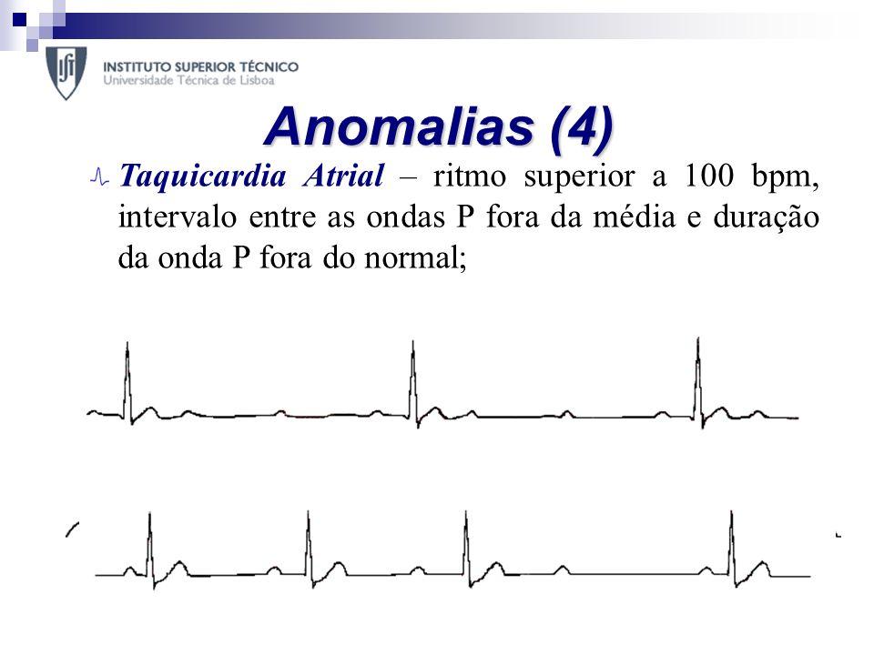 Anomalias (4) Taquicardia Atrial – ritmo superior a 100 bpm, intervalo entre as ondas P fora da média e duração da onda P fora do normal; Bloqueio Atr