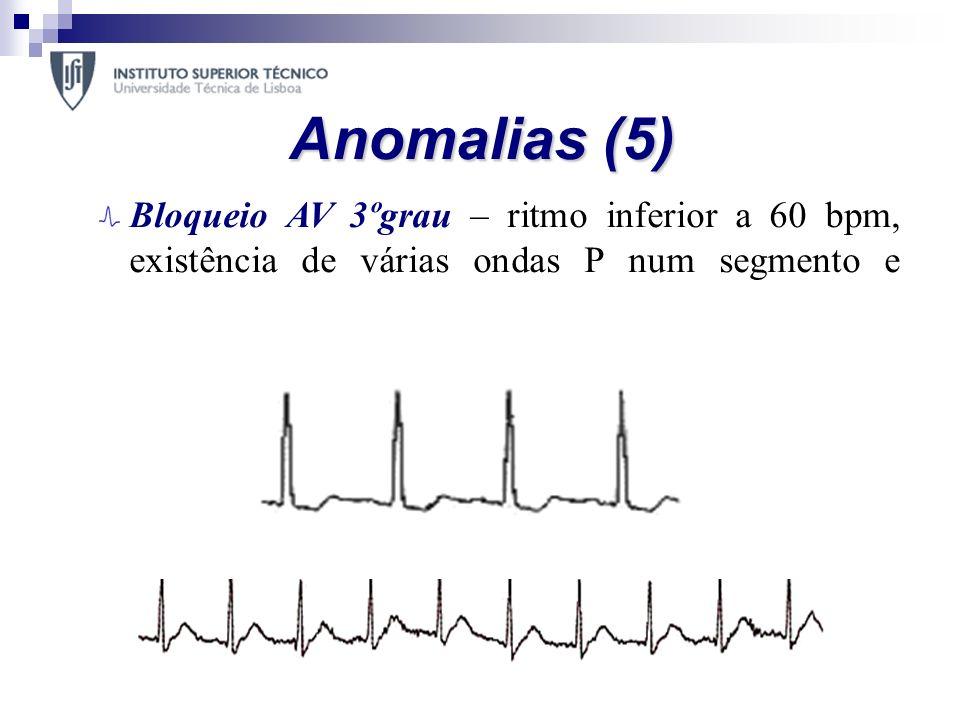 Anomalias (5) Bloqueio AV 3ºgrau – ritmo inferior a 60 bpm, existência de várias ondas P num segmento e intervalo PR inconstante; Bloqueio Sinoatrial