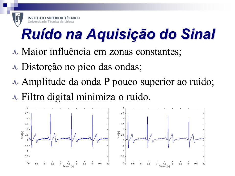 Ruído na Aquisição do Sinal Maior influência em zonas constantes; Distorção no pico das ondas; Amplitude da onda P pouco superior ao ruído; Filtro dig
