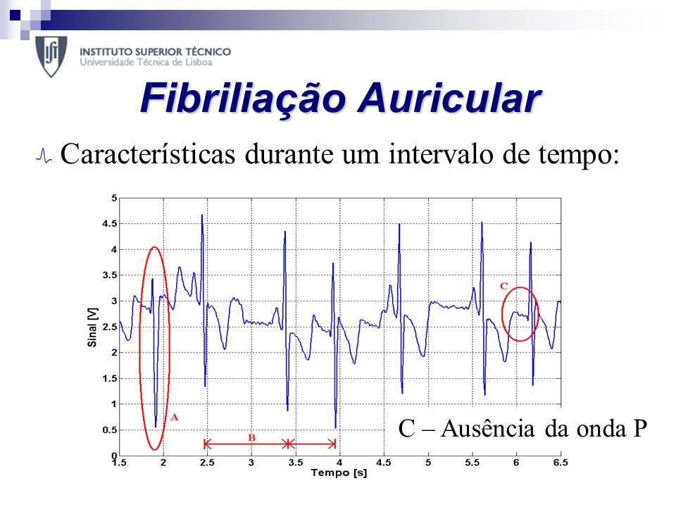 Fibriliação Auricular Características durante um intervalo de tempo: A – QRS não normalB – Ritmo inconstante C – Ausência da onda P