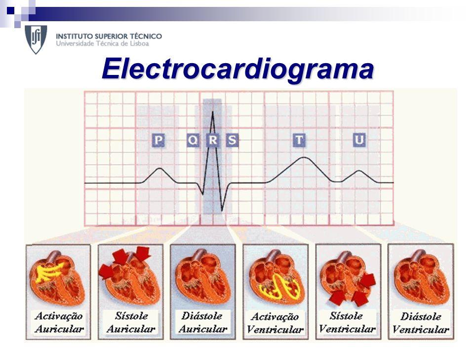 Electrocardiograma O electrocardiograma (ECG) é o método mais simples e importante no diagnóstico de doenças cardiovasculares. Este regista a activida