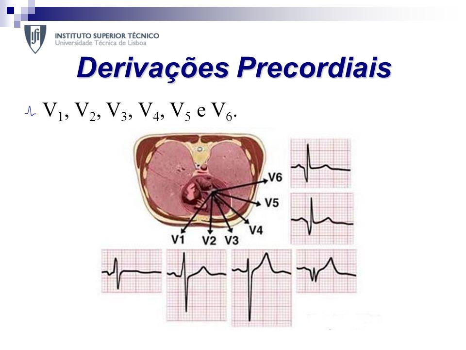 Derivações Precordiais V 1, V 2, V 3, V 4, V 5 e V 6.