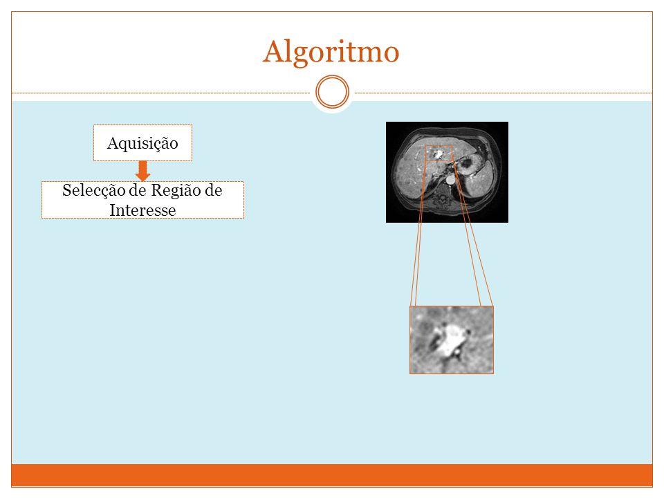 Algoritmo Aquisição Selecção de Região de Interesse
