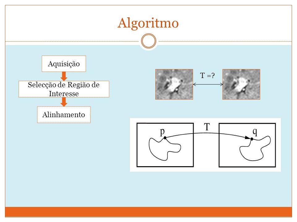 Algoritmo Aquisição Selecção de Região de Interesse Alinhamento T =