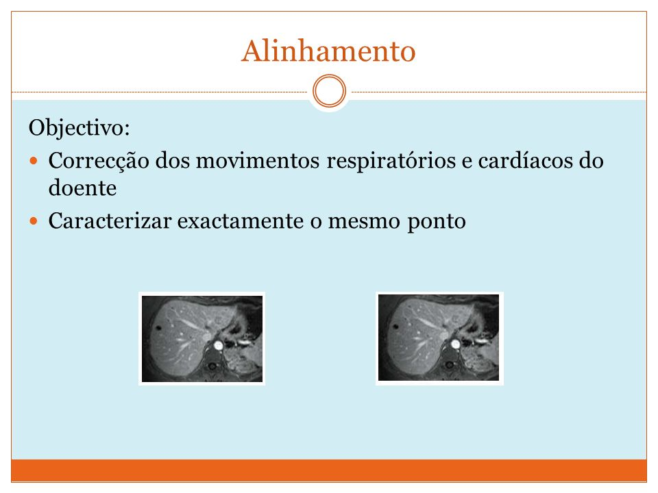 Alinhamento Objectivo: Correcção dos movimentos respiratórios e cardíacos do doente Caracterizar exactamente o mesmo ponto