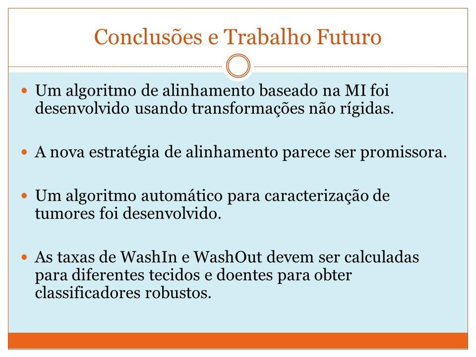 Um algoritmo de alinhamento baseado na MI foi desenvolvido usando transformações não rígidas.