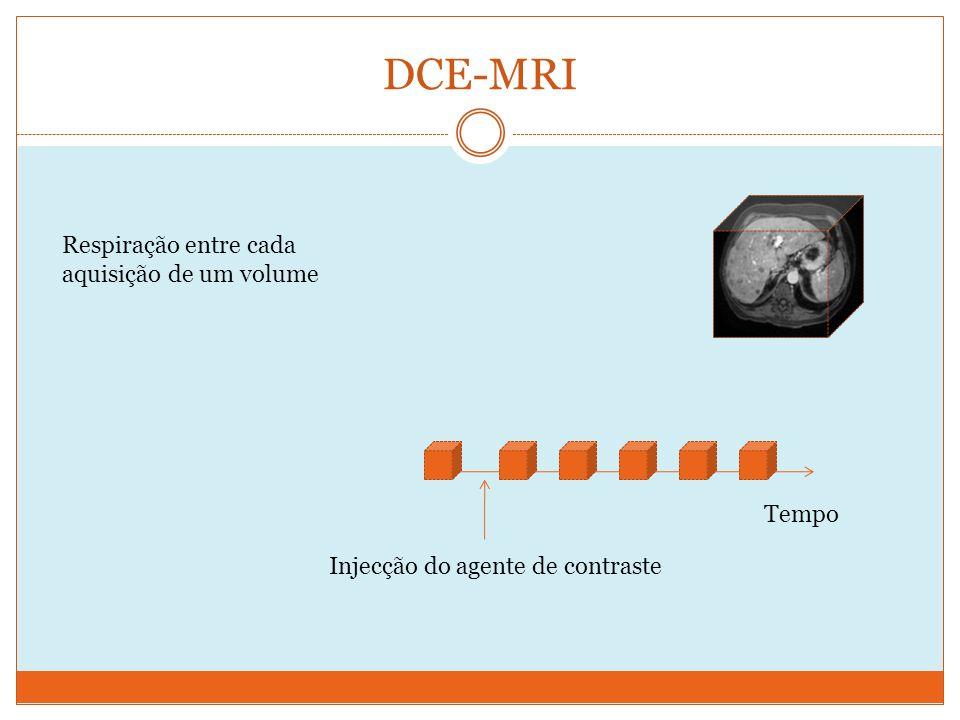 DCE-MRI Tempo Injecção do agente de contraste Respiração entre cada aquisição de um volume