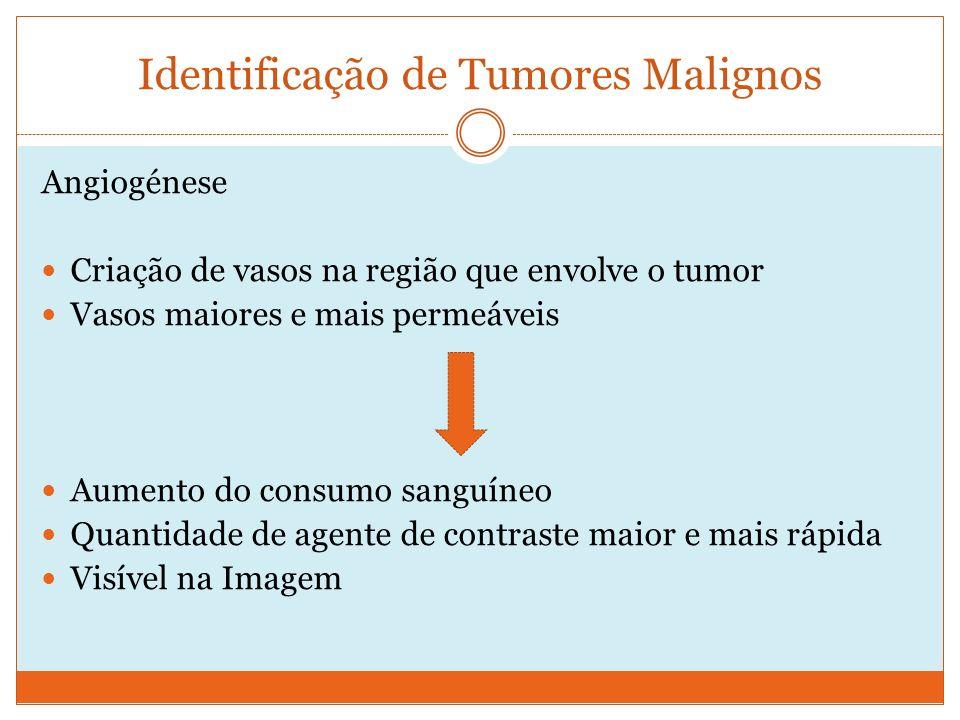 Identificação de Tumores Malignos Angiogénese Criação de vasos na região que envolve o tumor Vasos maiores e mais permeáveis Aumento do consumo sanguíneo Quantidade de agente de contraste maior e mais rápida Visível na Imagem