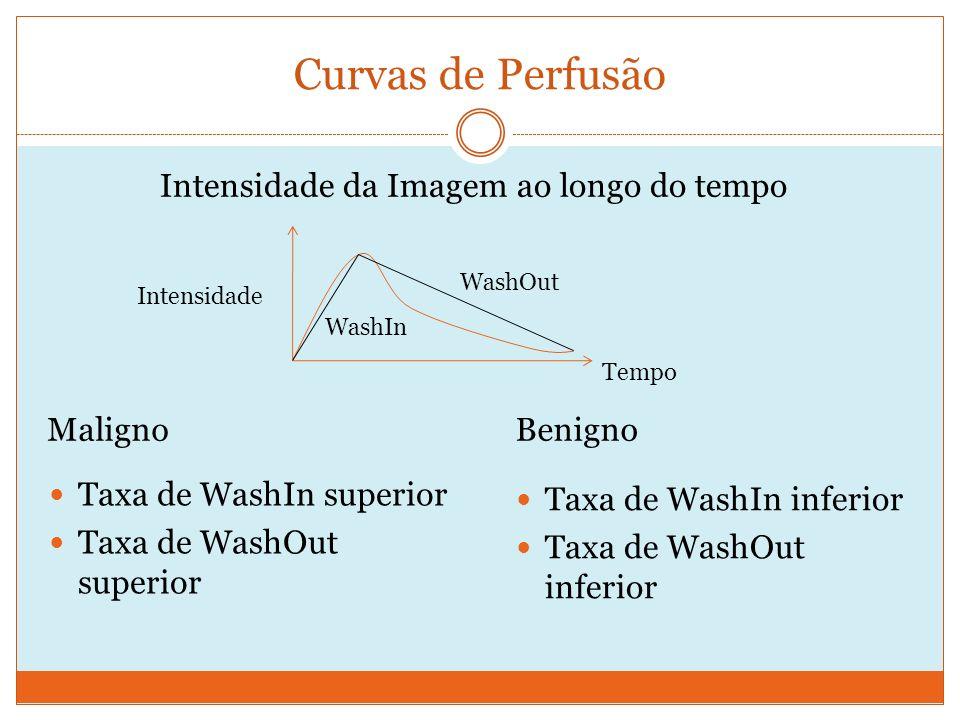 Curvas de Perfusão Taxa de WashIn superior Taxa de WashOut superior BenignoMaligno Taxa de WashIn inferior Taxa de WashOut inferior Intensidade da Imagem ao longo do tempo Tempo Intensidade WashIn WashOut