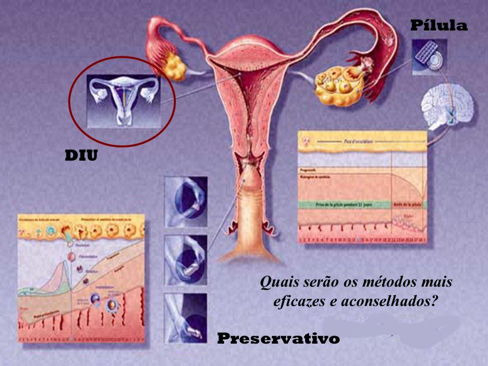 Por mais seguro que seja o Método Contraceptivo, há sempre um risco, por pequeno que seja, de gravidez. A forma de a evitar a 100 % é proceder a uma E