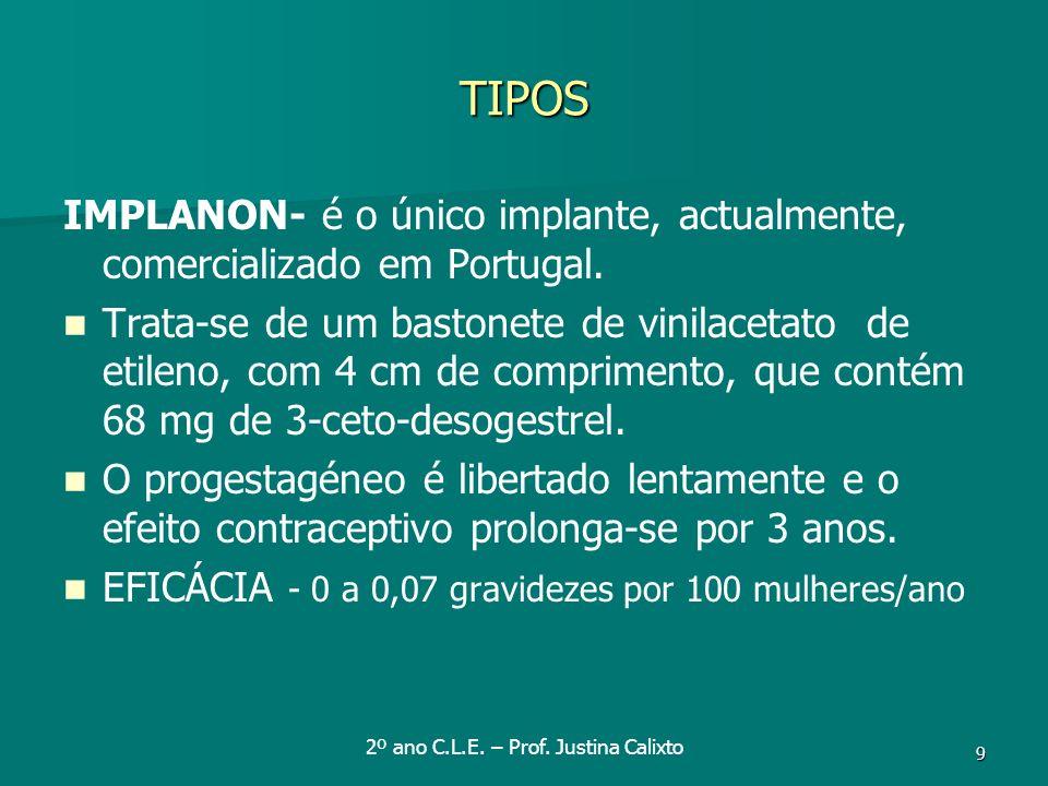 9 TIPOS IMPLANON- é o único implante, actualmente, comercializado em Portugal. Trata-se de um bastonete de vinilacetato de etileno, com 4 cm de compri