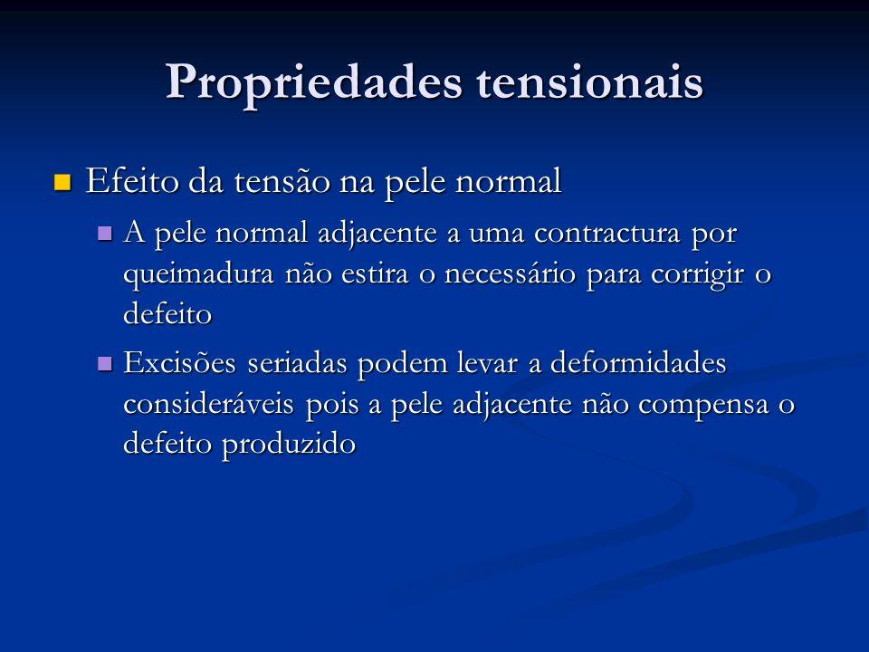Propriedades tensionais Efeito da tensão na pele normal Efeito da tensão na pele normal A pele normal adjacente a uma contractura por queimadura não e