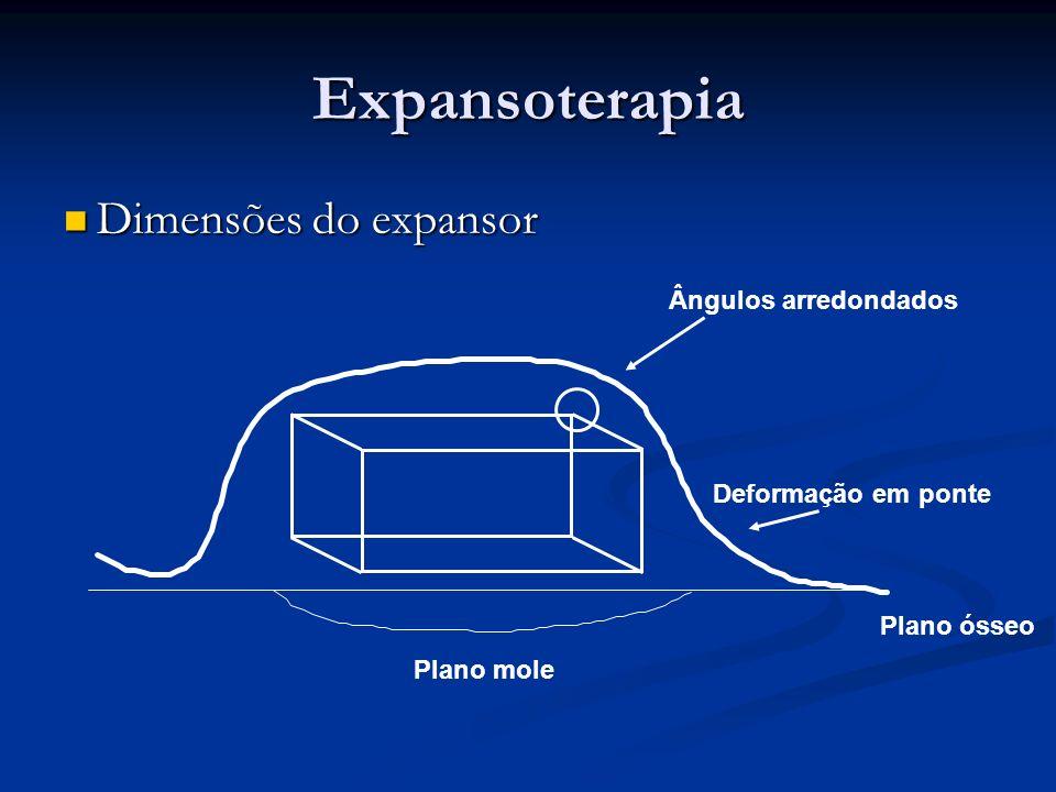 Dimensões do expansor Dimensões do expansor Plano mole Plano ósseo Deformação em ponte Ângulos arredondados Expansoterapia
