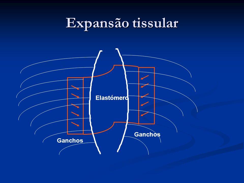 Elastómero Ganchos Expansão tissular