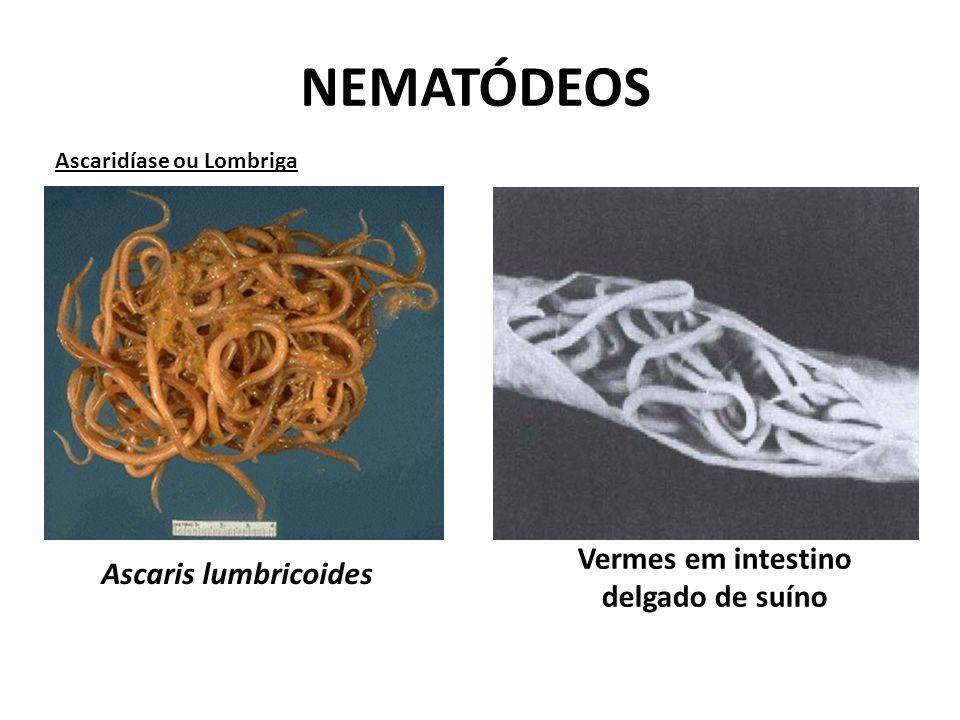 Ascaris lumbricoides Vermes em intestino delgado de suíno NEMATÓDEOS Ascaridíase ou Lombriga