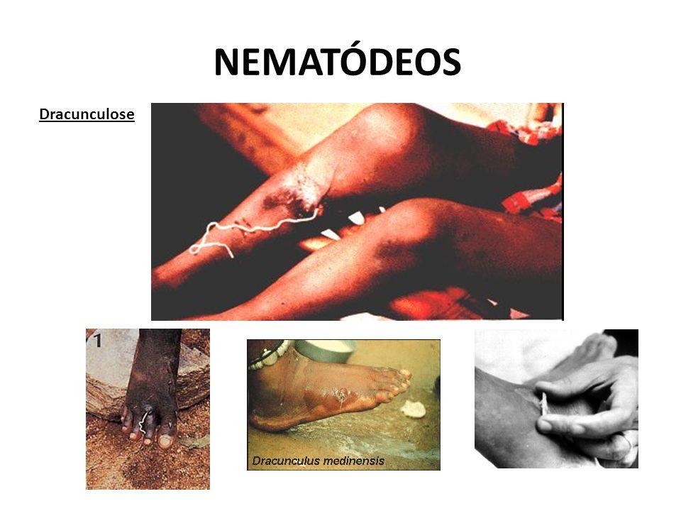 NEMATÓDEOS Dracunculose