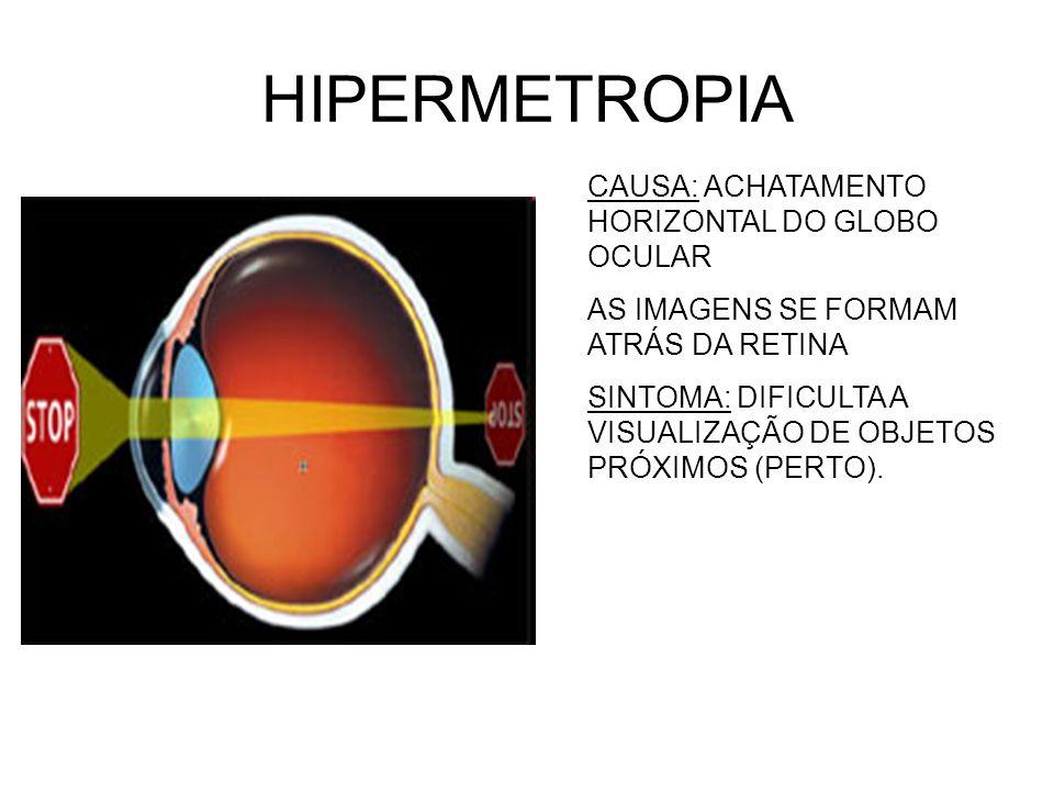 HIPERMETROPIA CAUSA: ACHATAMENTO HORIZONTAL DO GLOBO OCULAR AS IMAGENS SE FORMAM ATRÁS DA RETINA SINTOMA: DIFICULTA A VISUALIZAÇÃO DE OBJETOS PRÓXIMOS (PERTO).