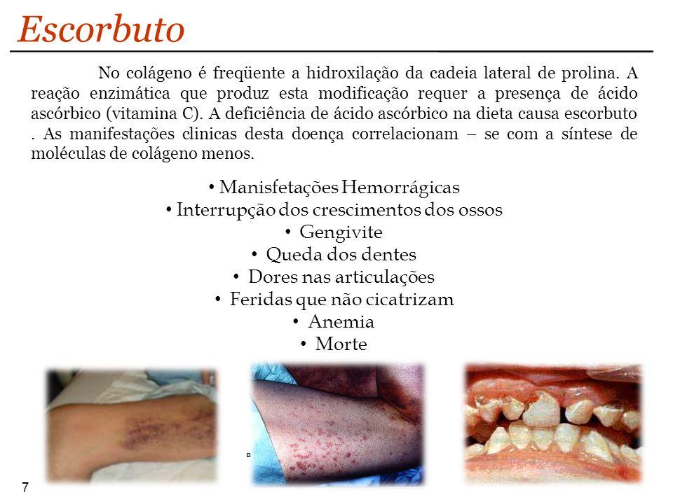 7 Escorbuto Manisfetações Hemorrágicas Interrupção dos crescimentos dos ossos Gengivite Queda dos dentes Dores nas articulações Feridas que não cicatr