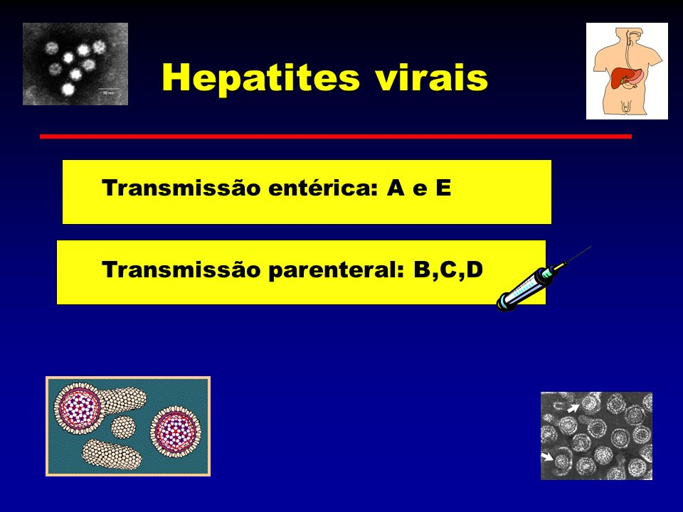 Hepatites virais Transmissão entérica: A e E Transmissão parenteral: B,C,D