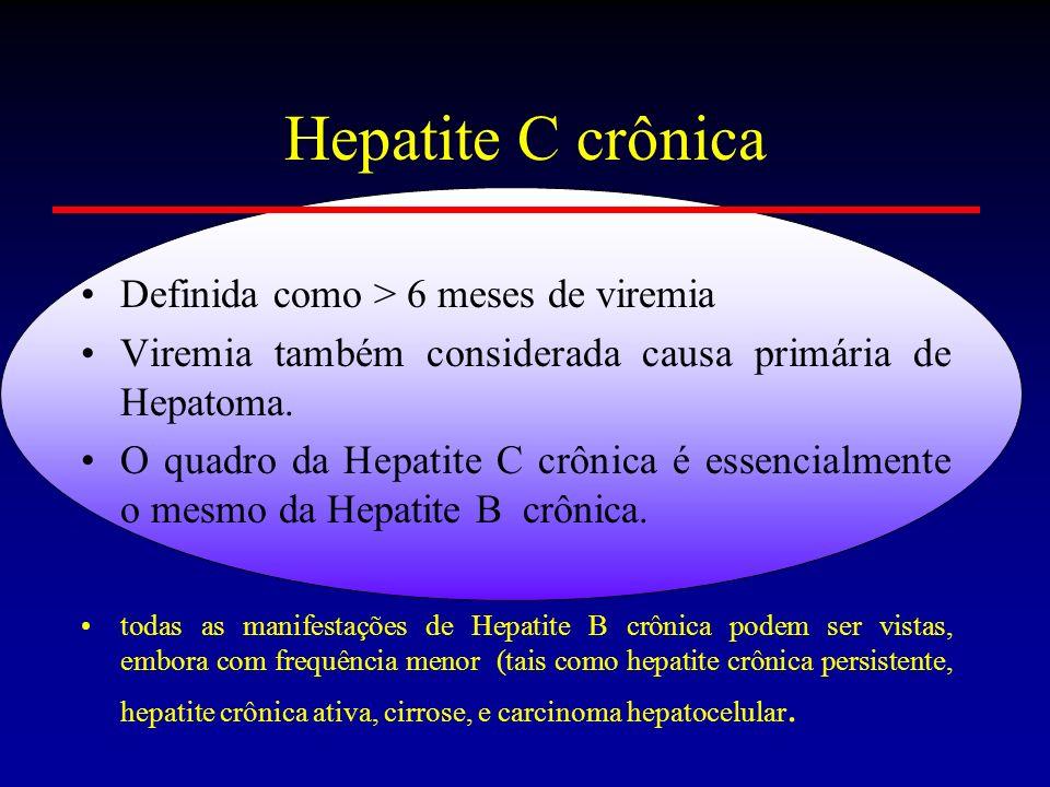 Hepatite C crônica Definida como > 6 meses de viremia Viremia também considerada causa primária de Hepatoma. O quadro da Hepatite C crônica é essencia