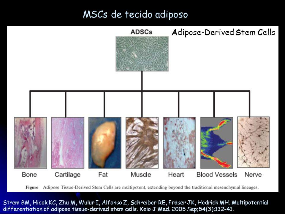 Ensaios clínicos com células-tronco Coleta de medula óssea Transplante Isolamento de subpopulações Isolamento da fração mononuclear CT hematopoiética