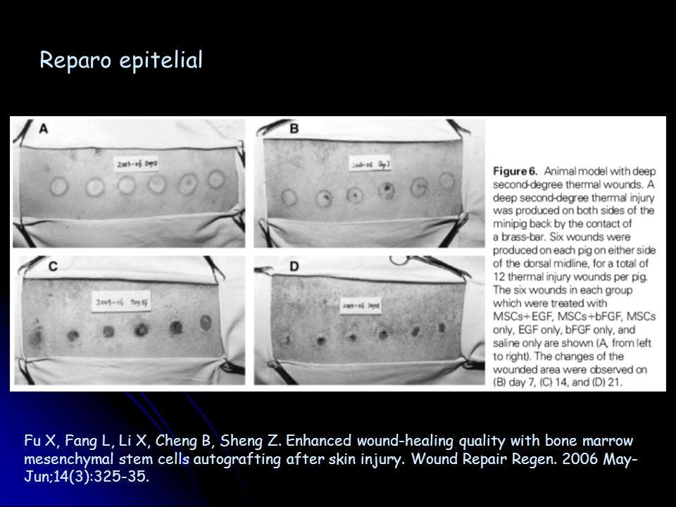 Rigotti G, Marchi A, Galie M, Baroni G, Benati D, Krampera M, Pasini A, Sbarbati A. Clinical treatment of radiotherapy tissue damage by lipoaspirate t