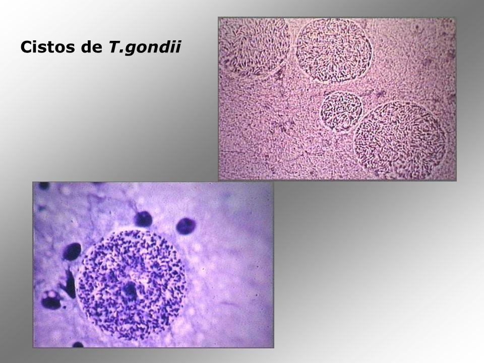 Oocisto de T. gondii