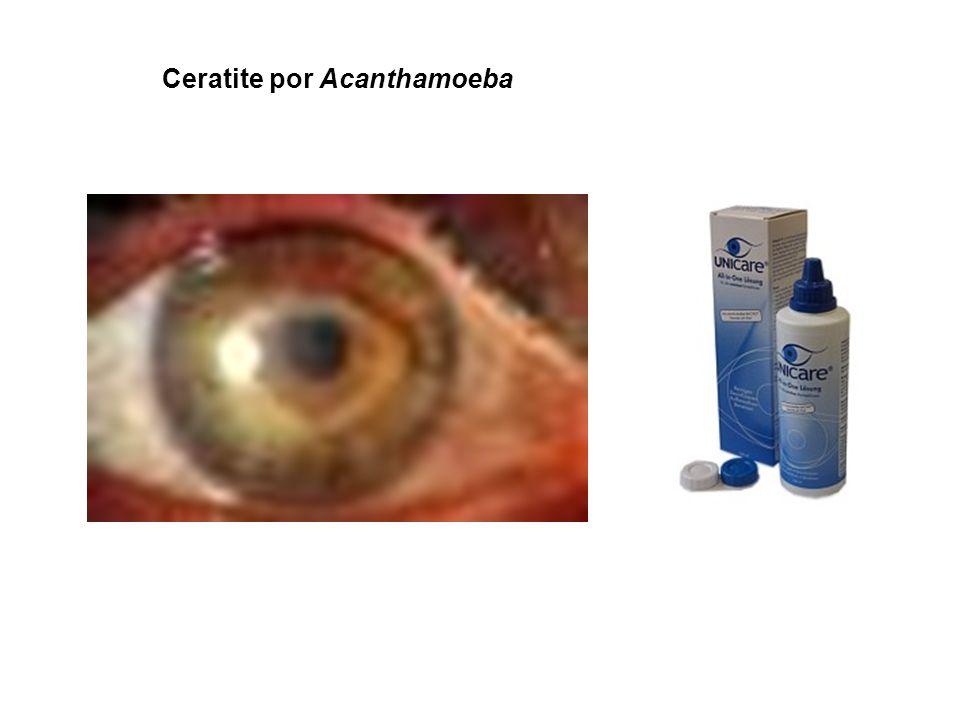 Ceratite por Acanthamoeba