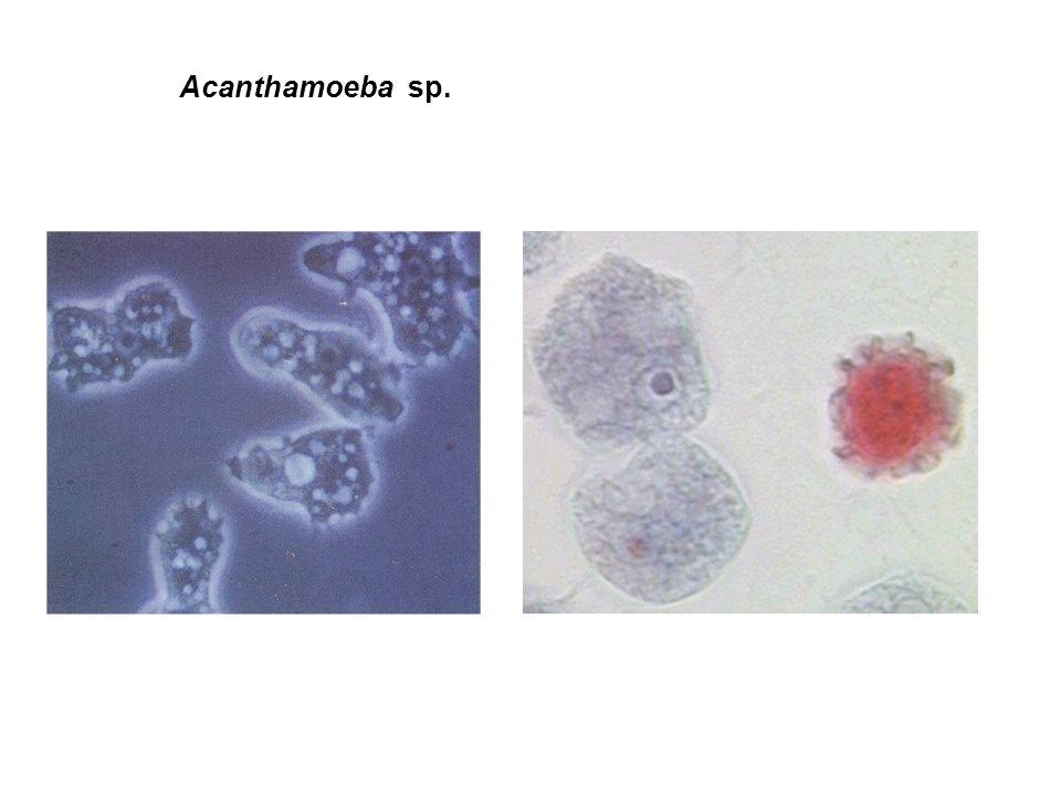 Lesões por Acanthamoeba