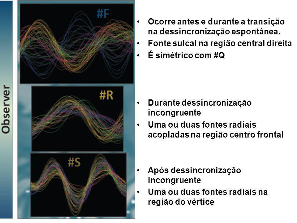 Ocorre antes e durante a transição na dessincronização espontânea. Fonte sulcal na região central direita É simétrico com #Q Durante dessincronização