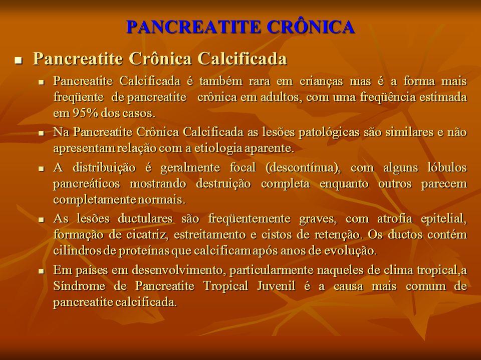 PANCREATITE CRÔNICA Pancreatite Crônica Calcificada Pancreatite Crônica Calcificada Pancreatite Calcificada é também rara em crianças mas é a forma ma