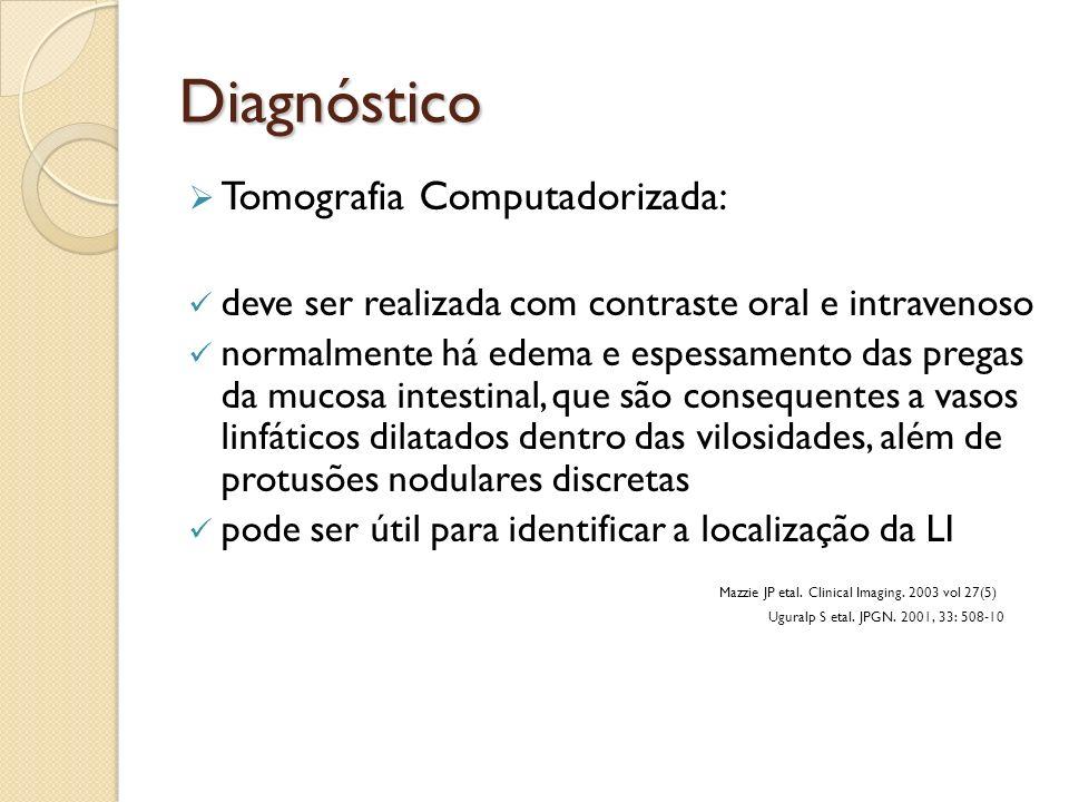 Diagnóstico Tomografia Computadorizada: deve ser realizada com contraste oral e intravenoso normalmente há edema e espessamento das pregas da mucosa i