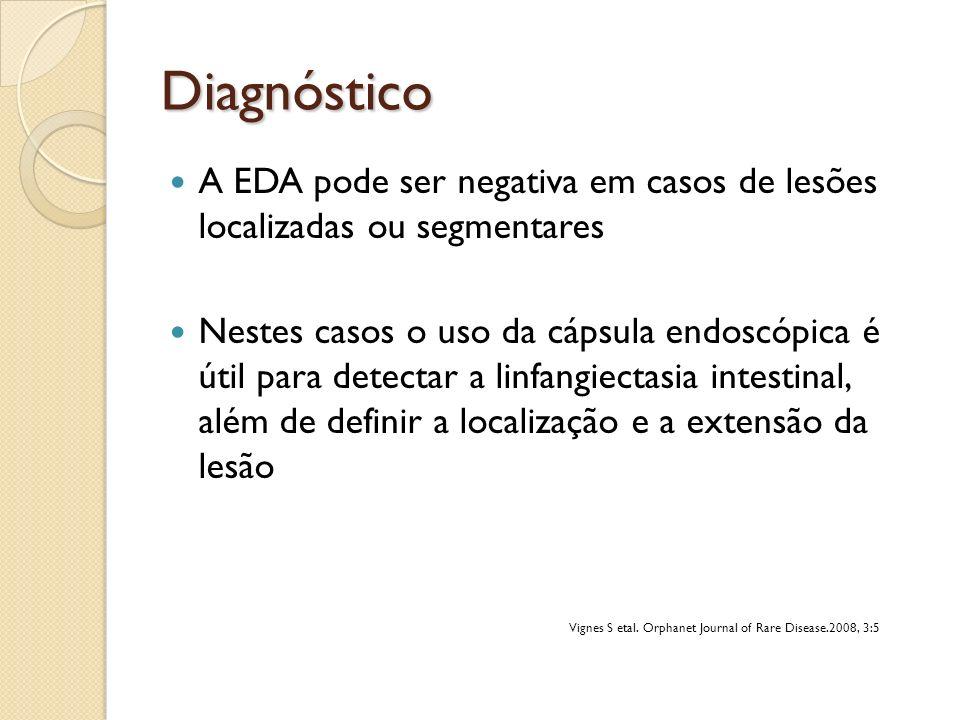 Diagnóstico A EDA pode ser negativa em casos de lesões localizadas ou segmentares Nestes casos o uso da cápsula endoscópica é útil para detectar a lin