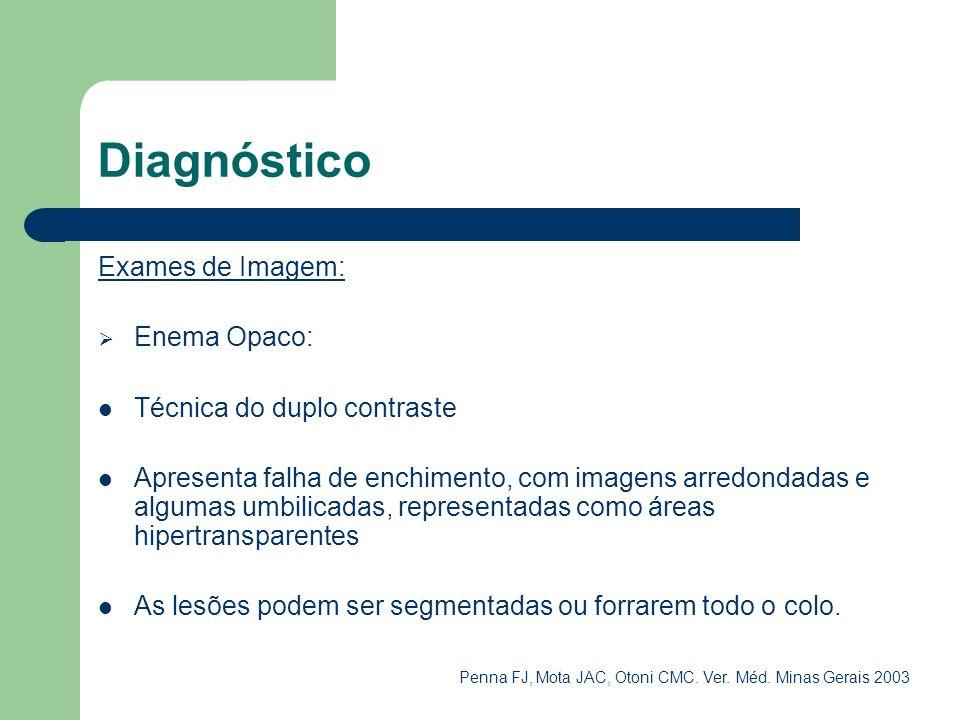 Diagnóstico Exames de Imagem: Enema Opaco: Técnica do duplo contraste Apresenta falha de enchimento, com imagens arredondadas e algumas umbilicadas, r