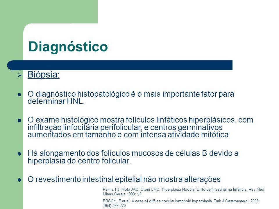 Diagnóstico Biópsia : O diagnóstico histopatológico é o mais importante fator para determinar HNL. O exame histológico mostra folículos linfáticos hip