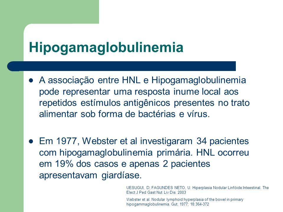 Hipogamaglobulinemia A associação entre HNL e Hipogamaglobulinemia pode representar uma resposta inume local aos repetidos estímulos antigênicos prese