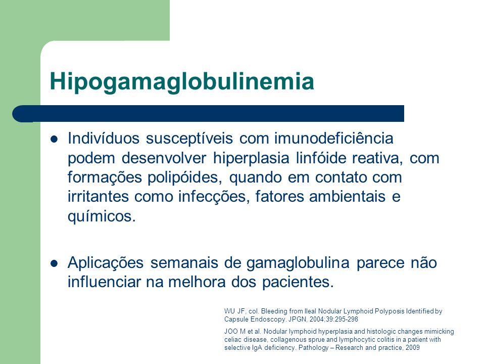 Hipogamaglobulinemia Indivíduos susceptíveis com imunodeficiência podem desenvolver hiperplasia linfóide reativa, com formações polipóides, quando em