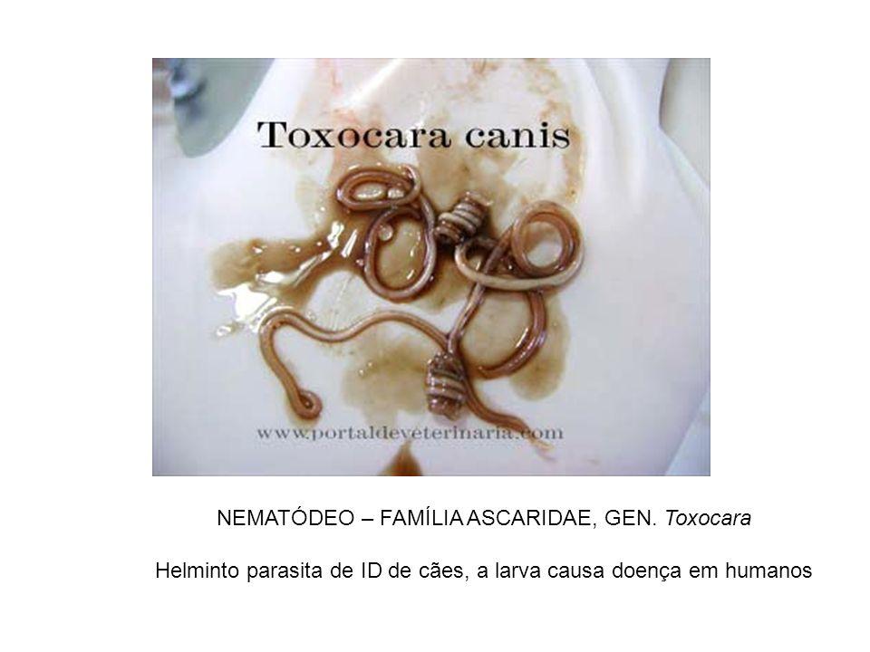 NEMATÓDEO – FAMÍLIA ASCARIDAE, GEN. Toxocara Helminto parasita de ID de cães, a larva causa doença em humanos
