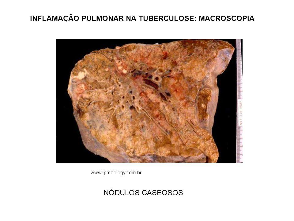 INFLAMAÇÃO PULMONAR NA TUBERCULOSE: MACROSCOPIA NÓDULOS CASEOSOS www. pathology.com.br