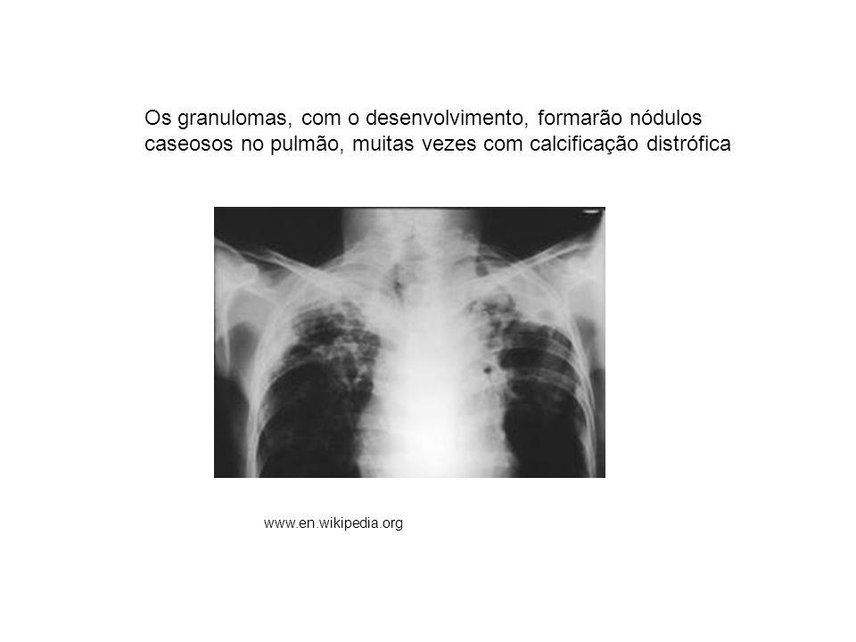 Os granulomas, com o desenvolvimento, formarão nódulos caseosos no pulmão, muitas vezes com calcificação distrófica www.en.wikipedia.org
