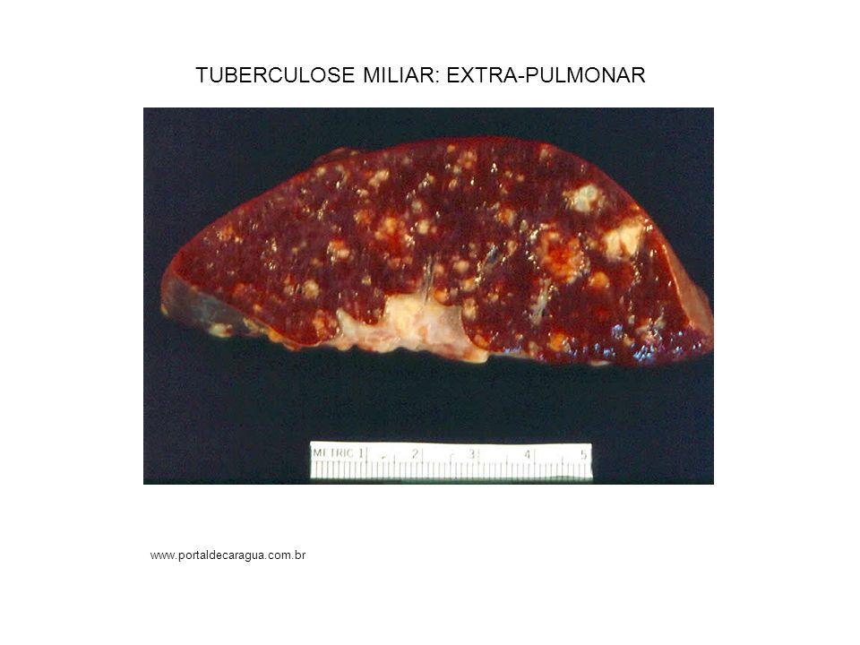 TUBERCULOSE MILIAR: EXTRA-PULMONAR www.portaldecaragua.com.br