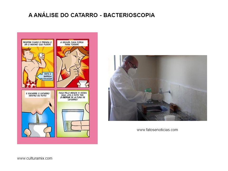 A ANÁLISE DO CATARRO - BACTERIOSCOPIA www.fatosenoticias.com www.culturamix.com