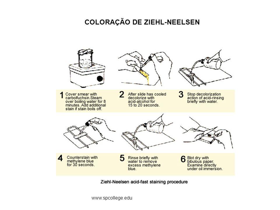 COLORAÇÃO DE ZIEHL-NEELSEN www.spcollege.edu