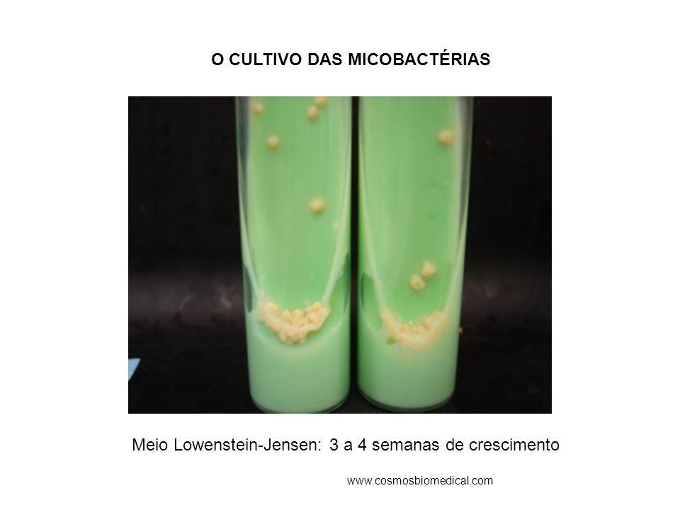 O CULTIVO DAS MICOBACTÉRIAS Meio Lowenstein-Jensen: 3 a 4 semanas de crescimento www.cosmosbiomedical.com