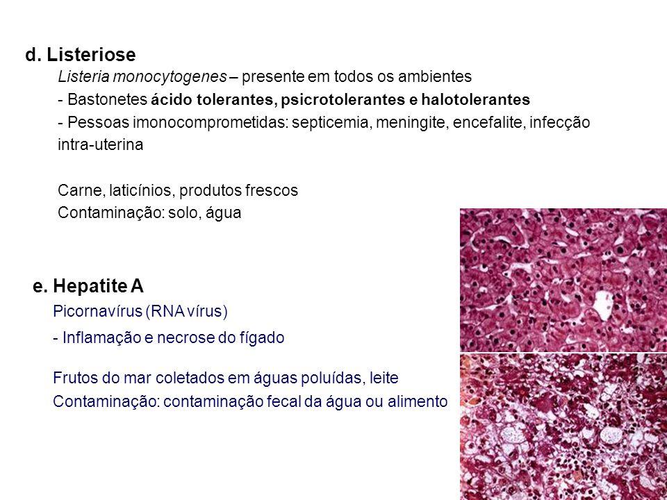 d. Listeriose Listeria monocytogenes – presente em todos os ambientes - Bastonetes ácido tolerantes, psicrotolerantes e halotolerantes - Pessoas imono